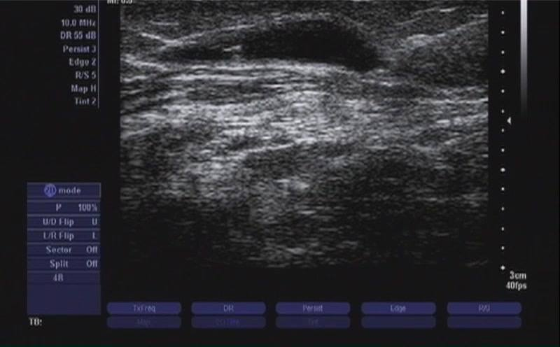 ULTRASOUND SHOWING ACCESS TO VEIN DURING LASER ABLATION