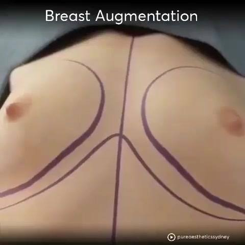 Breast augmentation procedure with silicone implants. For more information ☎ 095-492-3955 English speaker available 🇱️️:...